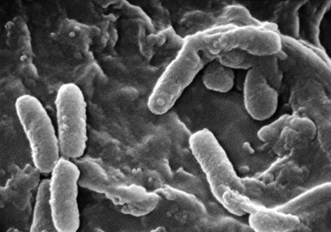 앵무새 박테리아 균